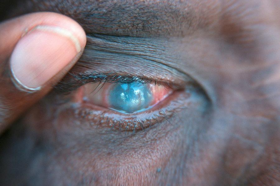 Santé oculaire: Ce jeudi était journée mondiale de  lutte contre le Glaucome