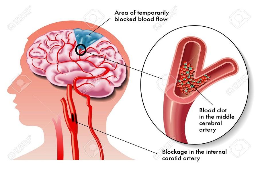 AVC : des symptômes qu'il ne faut pas ignorer