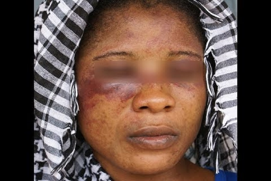 Mbouda/Drame : Un homme séquestre et tabasse sa femme  à mort